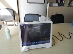 供应15英寸触摸屏高分辨率便携式超声诊断仪超声诊断设备